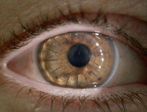 Ojo con queratocono transplantado de cornea