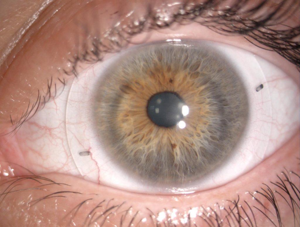Lente de contacto escleral
